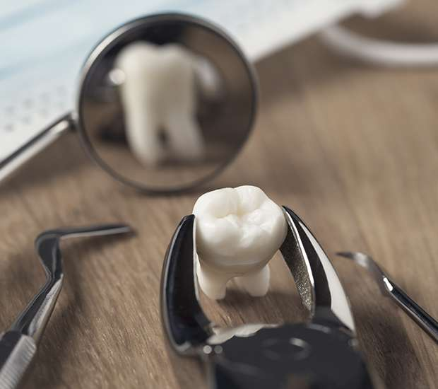 Los Angeles When Is a Tooth Extraction Necessary